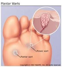 How do you get anal warts