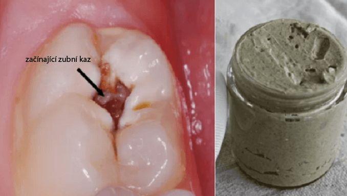 domaci bělicí a léčivá zubní pasta