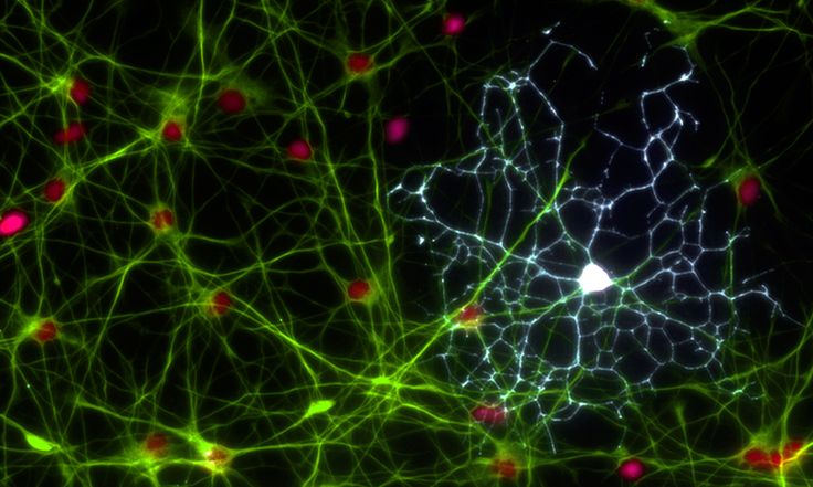 At first glance this may look like a spider's web but this web measures just 1/20 of a millimeter. It is made up of two types of brain cells – astrocytes in green and a white oligodendrocyte. These cells were originally thought of as the support cells for neurons but it is now known they are essential for many brain functions.