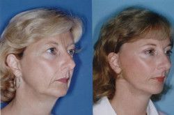 View Facelift Before & After Photos – #Facelift #photos #view
