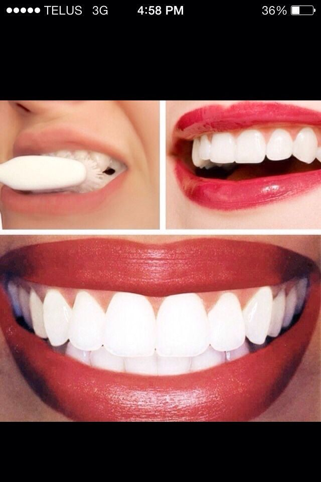 How To Whiten Your Teeth In The First Treatment #Beauty #Trusper #Tip
