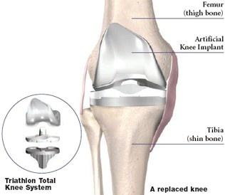 9 Best Knee Replacement Implants Images On Pinterest
