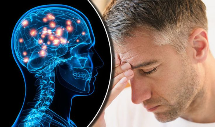 What is vascular dementia Symptoms causes and risk factors of the deadly condition - Express.co.uk #757Live