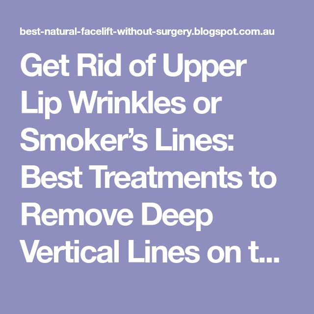 Get Rid of Upper Lip Wrinkles or Smoker's Lines: Best Treatments to Remove Deep Vertical Lines on the Upper Lip - Natural Facelift and Wrinkle Skin Care