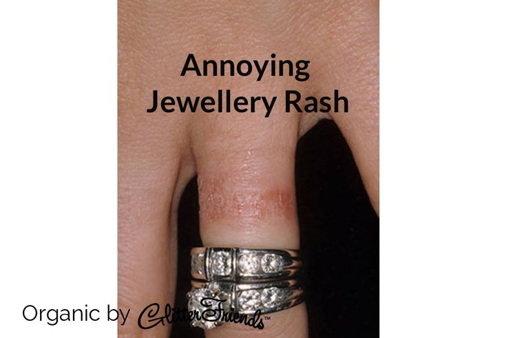 Avoid jewellery rash, keep the area where you wear your jewellery dry. Bracelets tend to cause itchiness to the skin when the wrists aren't completely dry. Bacteria starts to settle, odour will start to emerge, and skin itchiness will sure to follow. Make sure you wipe any remaining water from your wrist if you just washed. During gym and sporting activities, remove your jewellery so the sweat and metals won't have a negative reaction with each other.