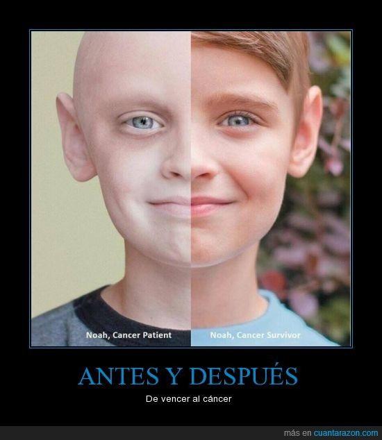 ANTES Y DESPUÉS - De vencer al cáncer