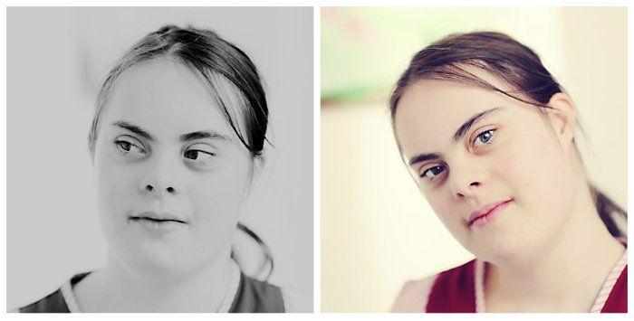 Красивые фотографии детей с синдромом Дауна  :