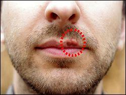 #Ayurvedic #Treatment for #Oral #Herpes - Causes, Symptoms, #Diagnosis & #Herbal #Remedies Oral Herpes is a viral #infection which is characterized by the occurrence of sores in and around the #mouth, particularly the border of the #lips.
