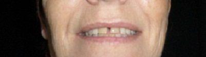 """Les dents du bonheur, seraient plutôt des dents de """"pas de chance""""...... explications"""