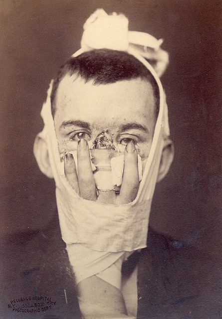 """Using one's own finger to replace their nose. ~ A facial reconstruction technique used during WWI & WWII. Caption reads: """"Rhinoplasty. Loss of nose due to an injury, and replacement by a finger in 1880. Surgery by Dr. E. Hart, photo by OG Mason, both of Bellevue Hospital, NY."""" via Otis Historical Archives of the National Museum of Health and Medicine, in Washington DC on flickr."""
