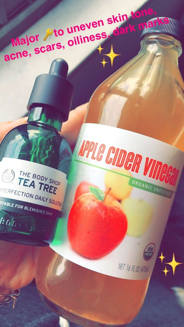 I was reluctant to use these because of the smell, but dilute apple cider vinegar with water, and pair with tee tree oil and you will not regret buying these!!!!