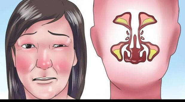 Máte rýmu a nemůžete dýchat? Ucpaný nos lidé většinou řeší sprejem do nosu, ale tahle slečna vám ukáže, jak snadno a rychle uvolnit nos šikovným trikem...