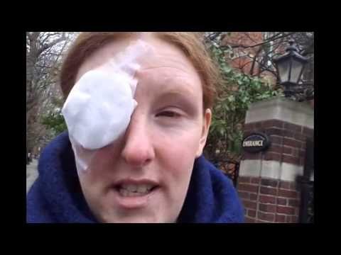 My Chalazion/Meibomian Eye Cyst Removal Video x