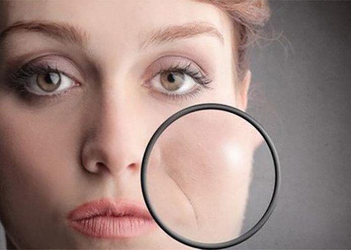 Если вас беспокоят носогубные морщины, тогда эта маска обязательно поможет. Спирулина (микроводоросль ), которая входит в состав маски, стимулирует выработку коллагена, избавляет от носогубных складок и помогает сохранить упругость и молодость кожи. Состав маски: желатин — 2 ч.л. спирулина — 4 таблетки сок лимона — 0,5 ч.л. витамин А — 2 капли Приготовление и применение: […]