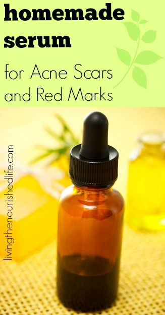 Homemade Serum for Acne Scars and Red Marks made with frankincense, lavender, and lemon essential oils.