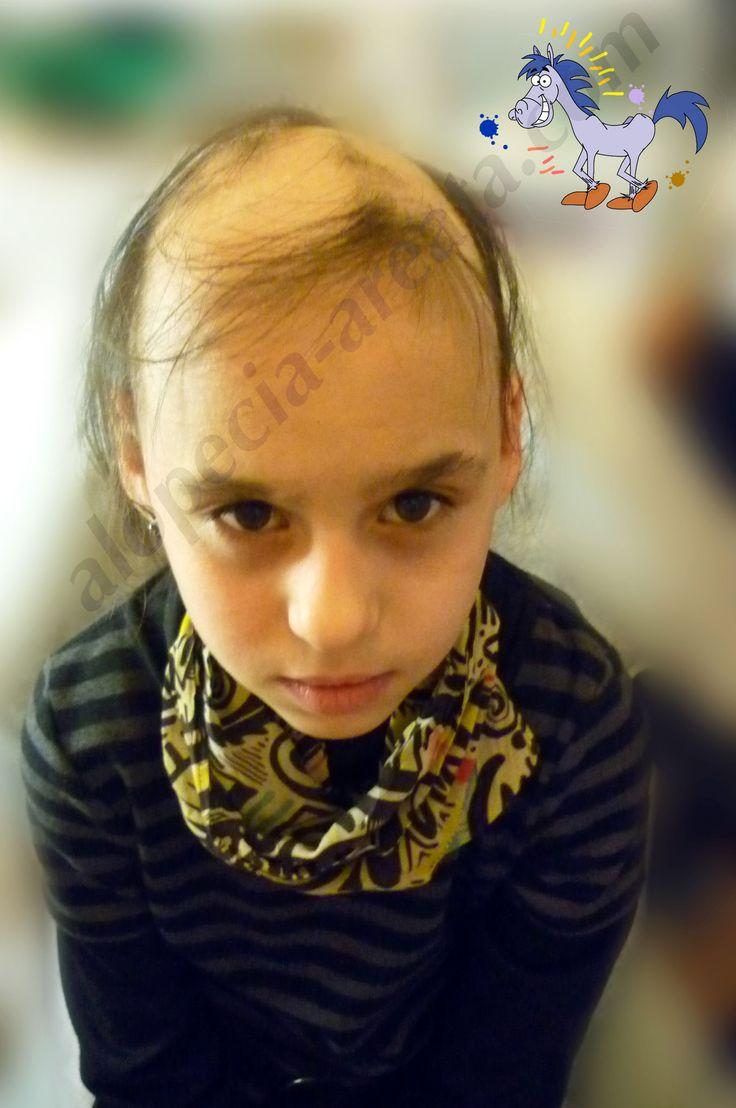 Выпадают волосы у девочки 7 лет