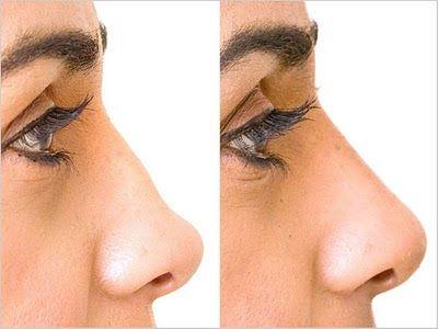 Restylane nose reshaping: Lunch break nose job anyone? | Beauty Scribbler