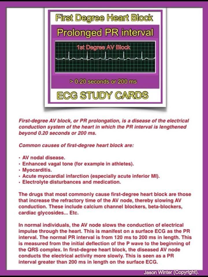 ECG - 1st Degree Heart Block