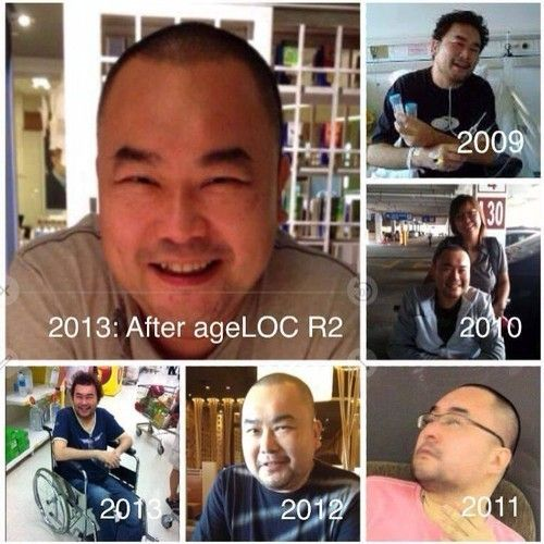 Kelvin shared how R2 gave him back his life, a wheelchair bound person with high uric acid and high sugar level with deteriorating liver.