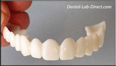 Veneers, Removeable Veneer, Dentures, Flippers, Pontics