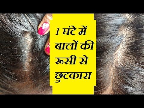 Natural home remedies for dandruff - Remove dandruff quickly -  CLICK HERE for The No. 1 Itchy Scalp, Dandruff, Dry Flaky Sore Scalp, Scalp Psoriasis Book! #dandruff #scalp #psoriasis Know how to remove dandruff quickly from hair in Hindi. Mixture of coconut oil and camphor is natural home remedy for dandruff and this is the best treatment for dandruff.... - #Dandruff