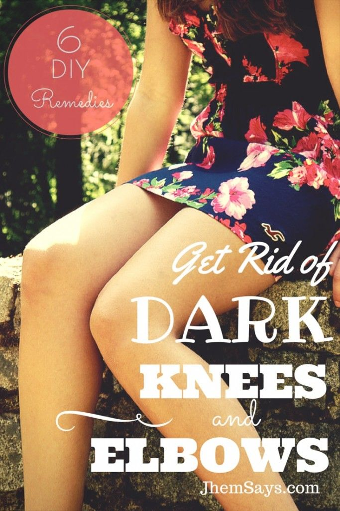 Natural Ways to Get Rid and Lighten Dark Knees and Elbows