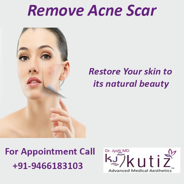 Remove the Acne Scars from your face as it deserves the Shiny Glow. Visit Kutiz Skin Care Clinic for get expert consultation.