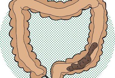 Basta de Gastritis - Esta bebida, es una alternativa natural que puede ayudarte a quitar la ansiedad e incluso a ayudarte a perder peso al suplirla por refrescos azucarados. - Vas a descubrir el método más efectivo y hasta ahora guardado CELOSAMENTE por los gastroenterólogos más prestigiosos del mundo