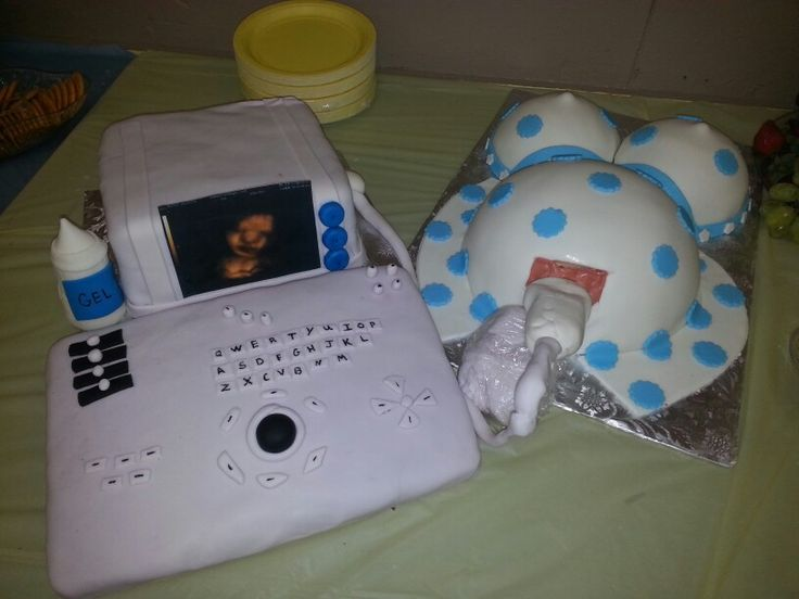 Ultrasound machine and pregnant belly cake
