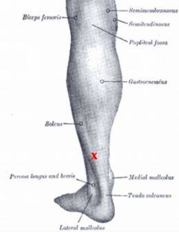 """Plantar Fasciitis Information: Soleus muscle with most distal trigger point indicated by red """"X."""""""