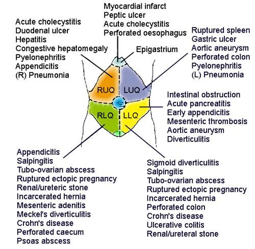 image of epigastrum and common disorders | Another way to consider the causes of an acute abdomen is by ...