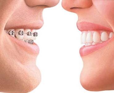 Smile.IN offers many types of braces with advance treatment at affordable prices. Visit website to know more.