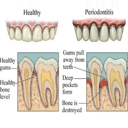 Today #Periodontal #Disease, be aware of this disease. If you are not Flossing daily, getting cleanings every six months then it will not prevent.