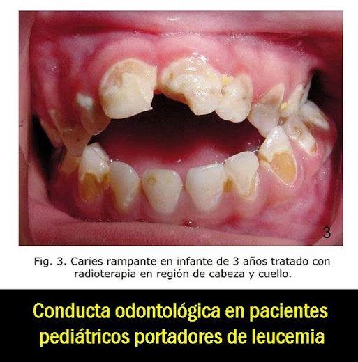 Conducta odontológica en pacientes pediátricos portadores de leucemia   OVI Dental