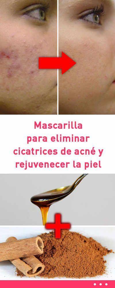 Mascarilla para eliminar cicatrices de acné y rejuvenecer la piel #cuidadodelapiel