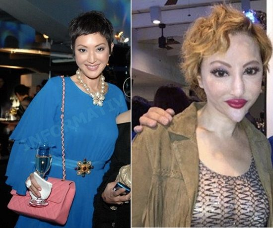 Fanny Sieh before after plastic surgery transformation Fanny Sieh, clearly not satisfied with her previous chin implants has decided to make some (deadly) changes, shaving it down so sharp, it could seriously do some damage.