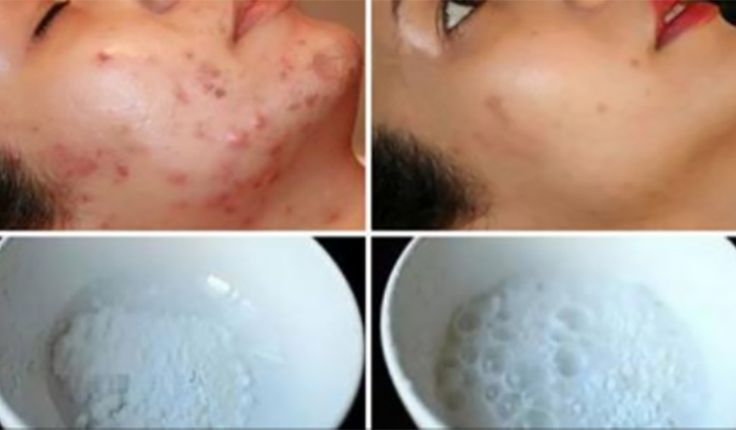 This Face Mask Magically Removes Stains, Acne Scars And Wrinkles After Second Use #beauty