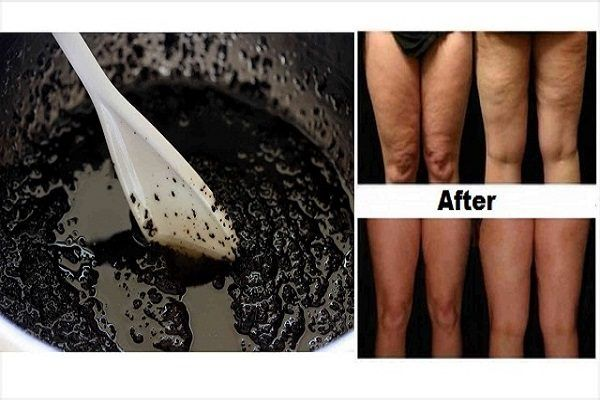 To eliminate cellulite fast all you will need is coconut oil and a handful of ground coffee beans. Just use the coffee beans initially to exfoliate your skin when you are taking a shower. Gently massage the crucial portions of your skin such as your thighs and buttocks, when you do you will be improving […]