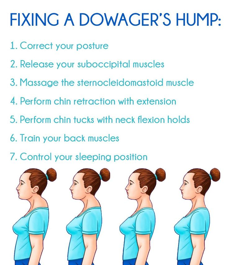 Dowagers hump fix avoid a dowagers hump granny health