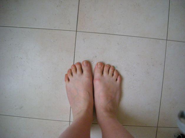Il fungo di piede e il fungo di unghie sono un e anche