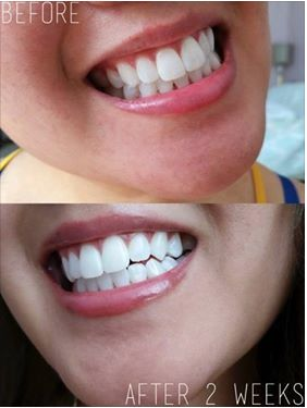 Oil Pulling Results after 14 Day package from PerlaCoco!   Check out 2, 4, 6 week packages to whiten teeth and provide a healthier smile organically.  Chemical free!   Perlacoco.com
