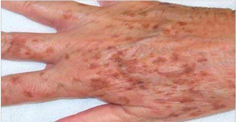 Com o avanço da idade, é muito comum o aparecimento de manchas na pele.Elas podem ter tamanhos variados e diferentes cores, como bege, branco, marrom ou preto.O mais comum é que se desenvolvam nas mãos, no rosto, nos ombros ou nos braços.