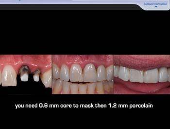 Dental WebinarΑν κάποιος συνάδελφος γνωρίζει και άλλες εταιρίες που παρέχουν δωρεάν Webinars παρακαλώ να επικοινωνήσει μαζί μου με τη φόρμα επικοινωνίας για να συμπληρώσω το άρθρο   Θα μπορούσε άραγε να υπάρξει Ελληνικό Οδοντιατρικό σεμινάριο μέσω ίντερνετ; Η απάντηση είναι ναι. Θα μπορούσε καταρχήν η ΕΟΟ (Ελληνική Οδοντιατρική Ομοσπονδία) είτε να συνεργαστεί με τις εταιρίες που έχω αναφέρει ή ακόμα θα μπορούσε να χρηματοδοτήσει κάποια ελληνική (κατά προτίμηση) ή ξένη εταιρία που θα…