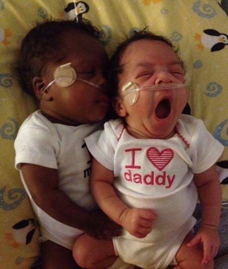 Boy/girl twins. Elijah and Elise 1/4 white, 1/4 black, 1/2 ...