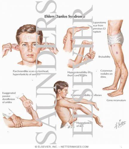 síndrome de ehlers-danlos sintomas