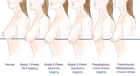 It's not breast-feeding that causes saggy breasts but many other factors that influence the amount of sag you have. http://emotepromo.com/international-rejuvenation/