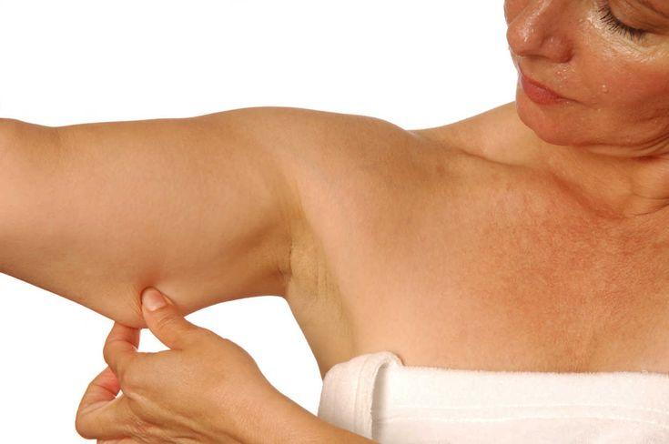 5 ejercicios para evitar la flacidez en los brazos