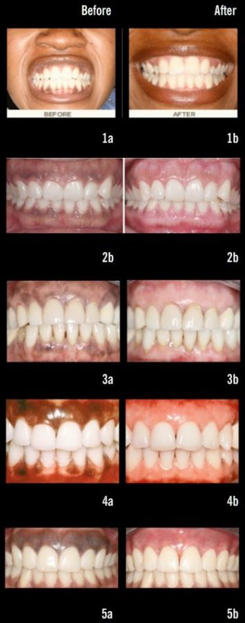 Gum Bleaching a Laser Procedure to Remove Pigments From Gums