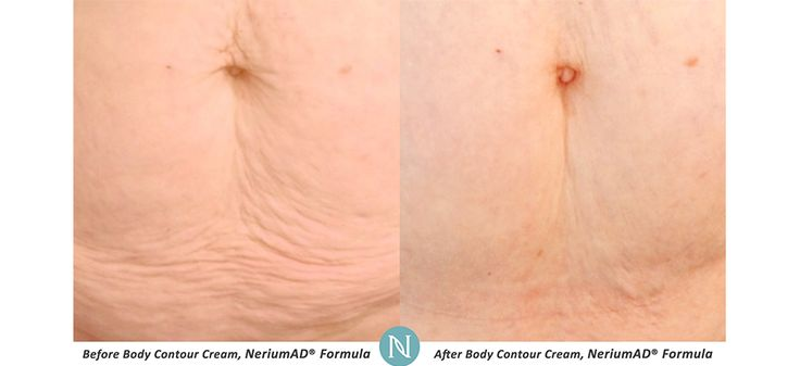Real Results Gallery   Nerium Real Results   Nerium Intl.