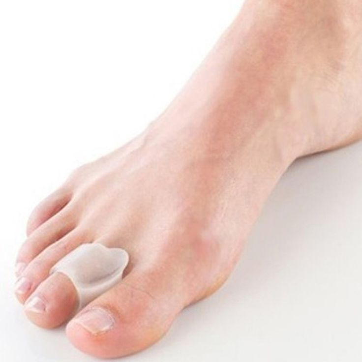 Hot-Free Silicone1Pair/Lot gel 【 toe separator/Gel Toe Bunion Guard/Bunion pain relief gel toe ᗗ protectorHot-Free Silicone1Pair/Lot gel toe separator/Gel Toe Bunion Guard/Bunion pain relief gel toe protector http://wappgame.com
